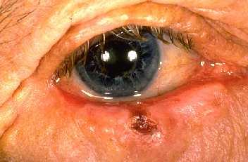 Basal Cell Carcinoma Eyelid